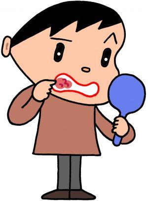 口内炎に苦しむ男性のイラスト
